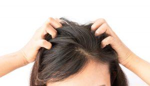 Stresul afectează scalpul capului